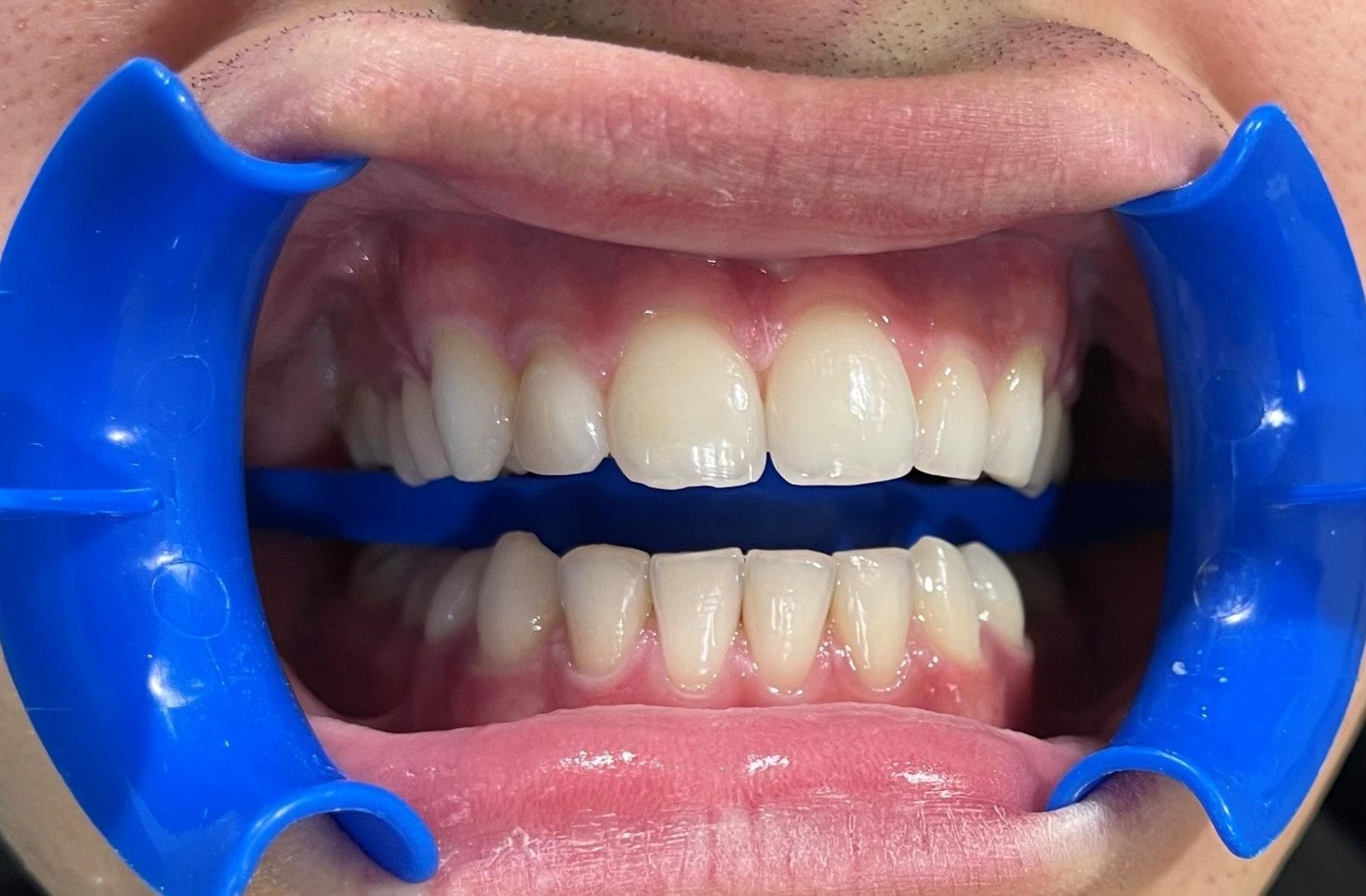 dientes amarillos con blanqueamiento