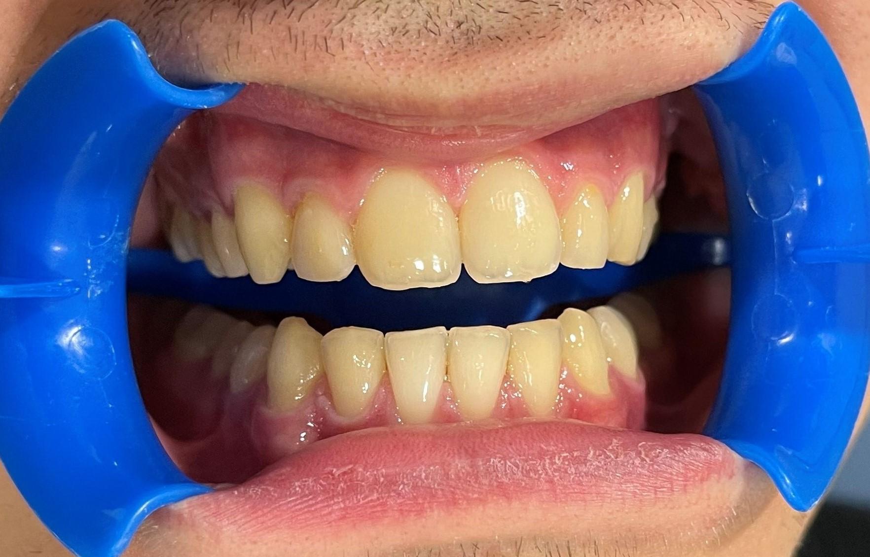 dientes amarillos sin blanqueamiento