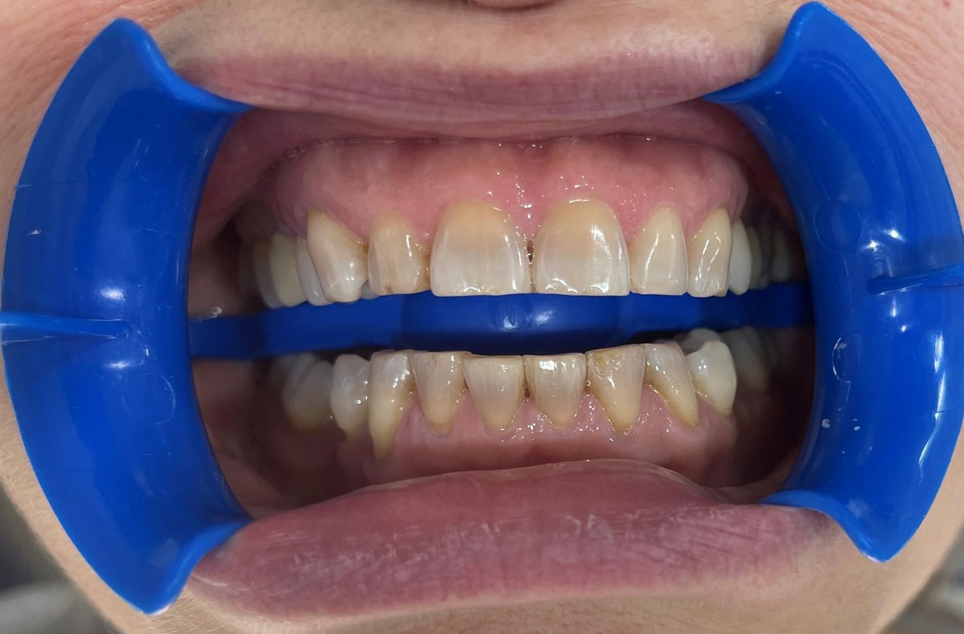 dientes con blanqueamiento