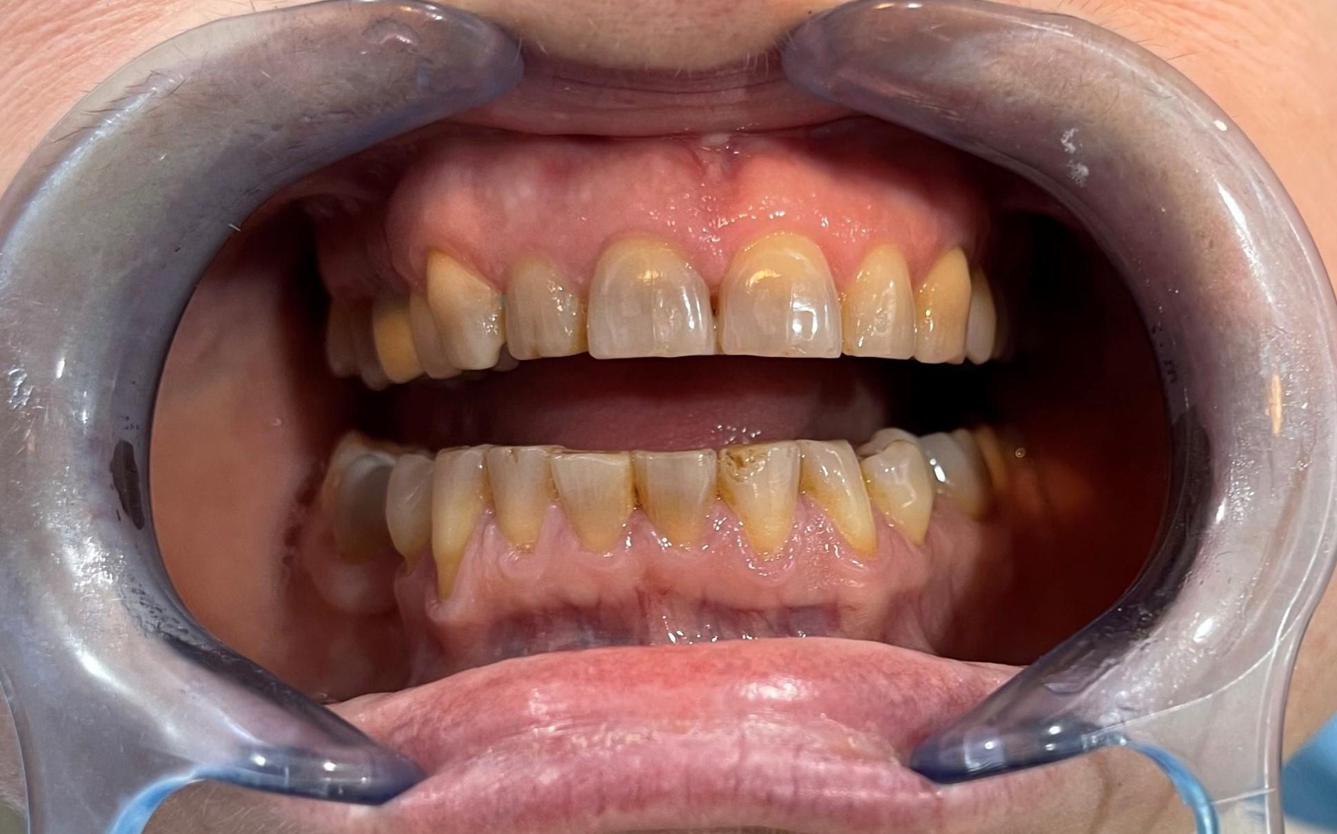 dientes sin blanqueamiento